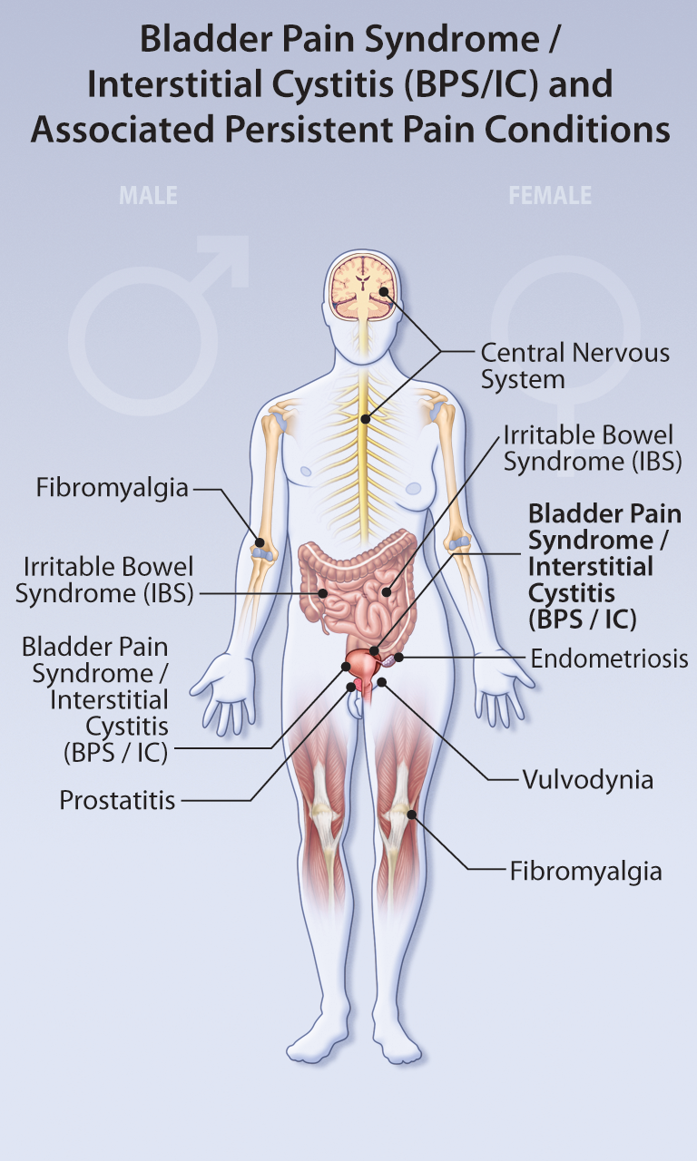 bladder pain syndrome   HealthPlexus.net