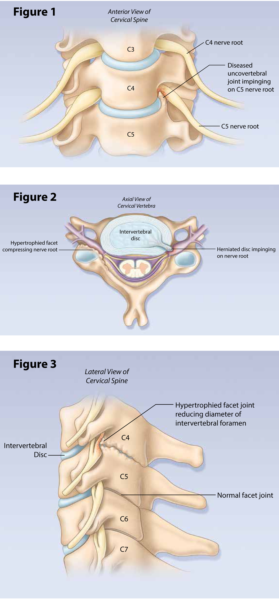 Surgery And The Root Of Middle Finger On Index Bone See Diagram 1 Cervical Pain Is A Common Clinical Problem Pure Radiculopathy Much Less Frequent