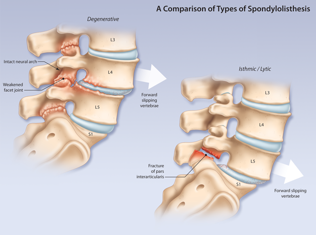 an analysis of under the knife of spondylolisthesis 12 degenerative spondylolisthesis  incompetence of the posterior facet joints  10x more common at the l4/5 than the l5/s1  not encountered in the under 50-year-old  the degree of slippage in the sagittal plane 2017 holiday survey: an annual analysis of the peak shopping season.