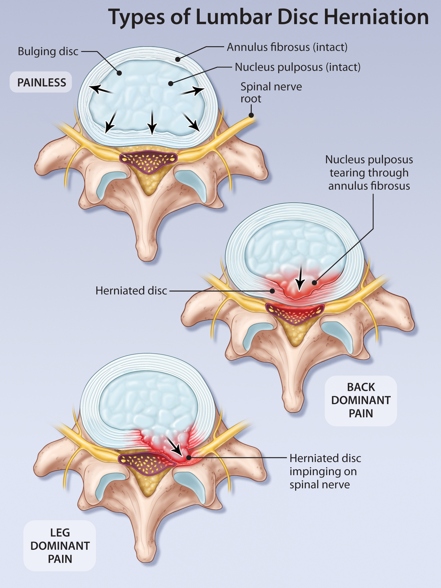 lumbar disc herniation The effect of lumbar disc herniation on spine loading characteristics during  trunk flexion and two types of picking up activities.
