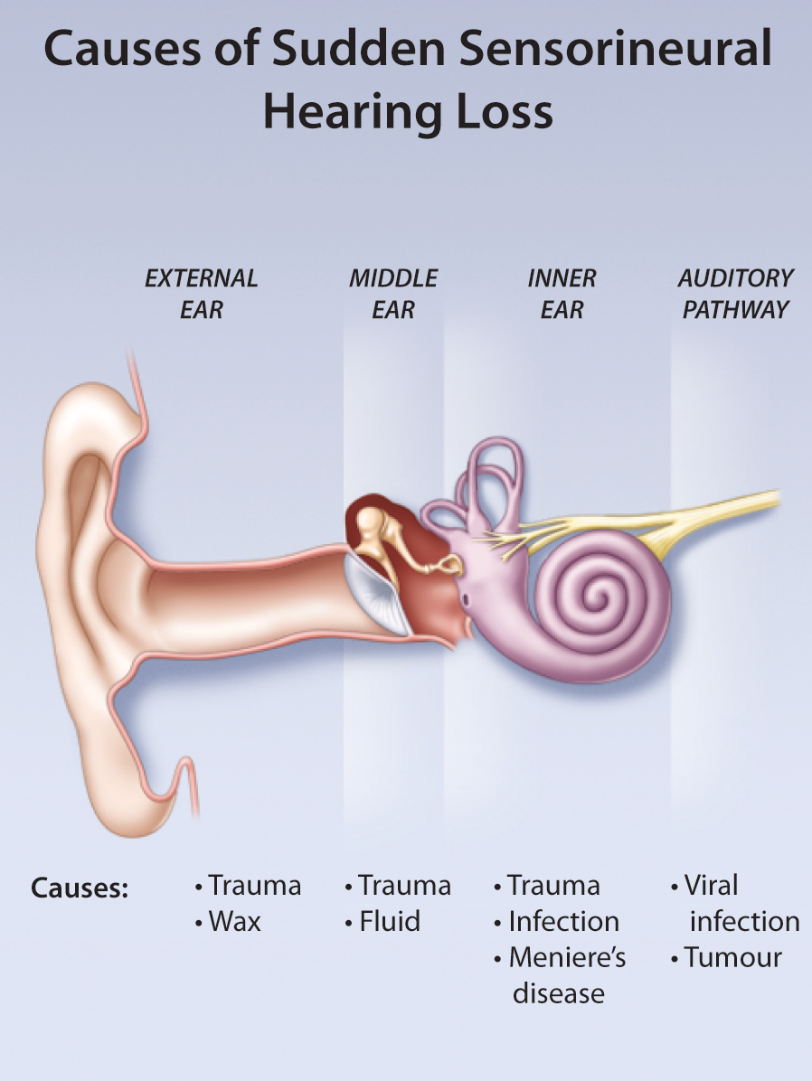 tinnitus ear and identified underlying cause Tinnitus can be a difficult problem to treat if an underlying cause is identified, addressing the root problem will give the best chance of resolving symptomsfor many people however, there is no single clear cause for their tinnitus – the problem appears without warning and may equally, disappear suddenly even after several months or years.