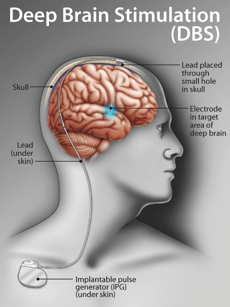 deep brain stimulation and parkinsons In today's post we will review the science behind deep brain stimulation and the research leading to non-invasive deep brain stimulation source: youtube in 2002, deep brain stimulation (or dbs) was granted approval for the treatment of parkinson's disease by the us food and drug administration (fda.