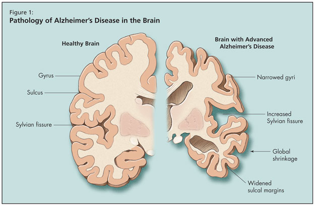 the causes spread and effects of alzheimers disease