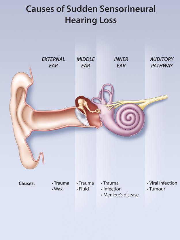 Sudden Sensorineural Hearing Loss—A Medical Emergency